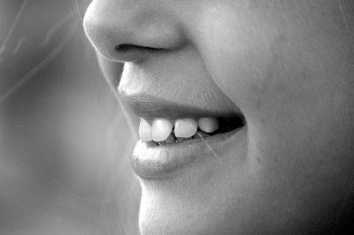 【歯列矯正】5回目 矯正装置の歯型を取った